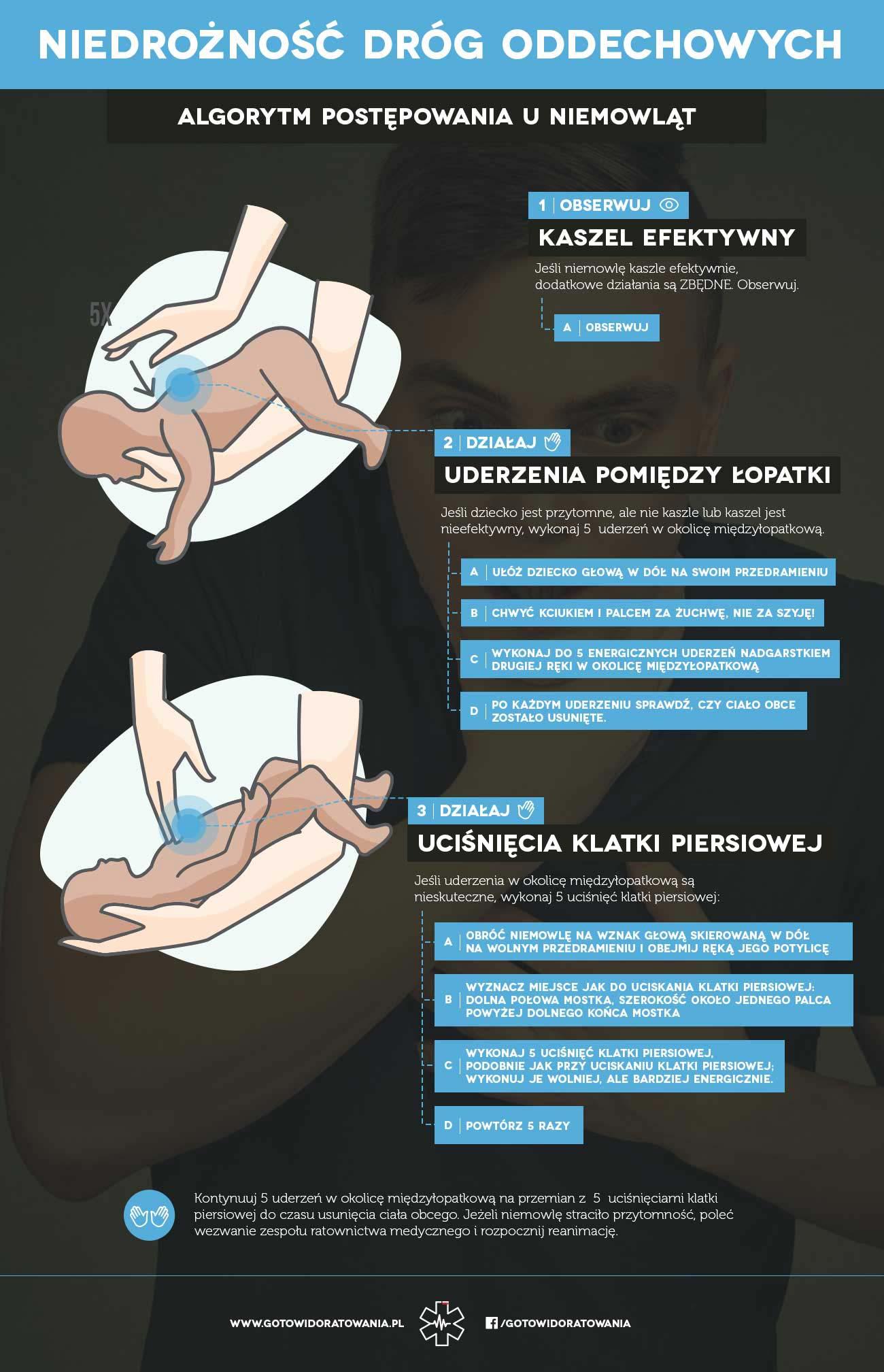 Pierwsza pomoc w zadławieniu niemowlak dziecko kurs pierwszej pomocy Wrocław szkolenie z pierwszej pomocy we Wrocławiu zadławienie zakrztuszenie pierwsza pomoc