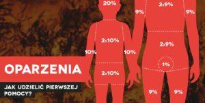 Oparzenia pierwsza pomoc, szkolenie z pierwszej pomocy Wrocław kurs pierwszej pomocy dla pracowników we Wrocławiu szkolenie z pierwszej pomocy dla firm